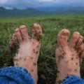 ноги в комарах