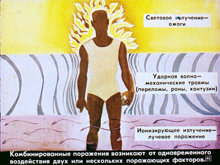 виды поражения при радиации