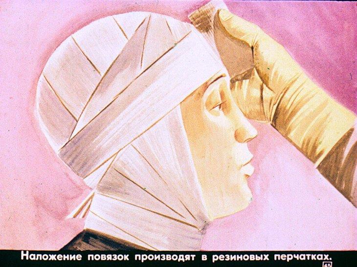 лучевая болезнь диафильм советский союз