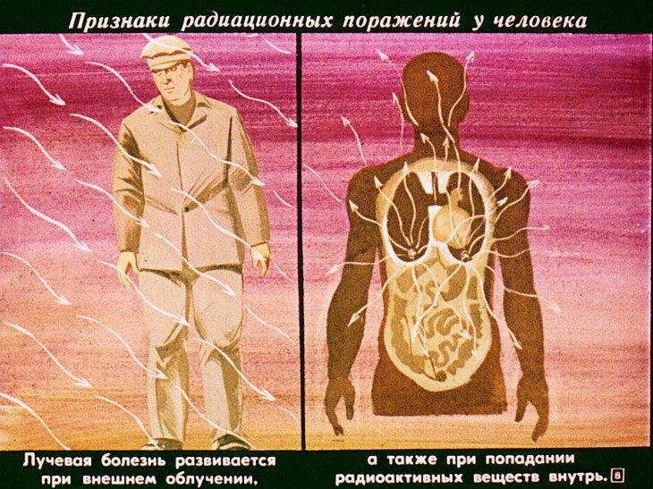 фотография радиактивного поражения на человеке