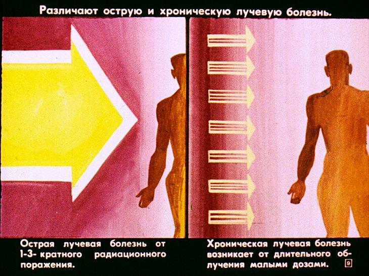 как радиация поражает человека
